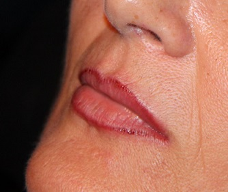 Bild tätowierte Lippen permanent make up lippenkontur