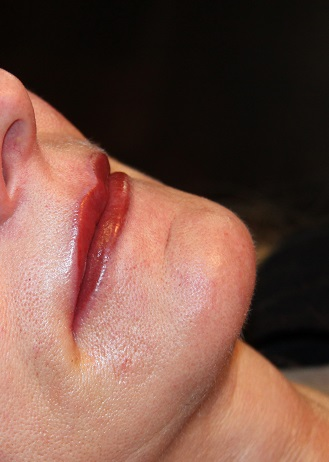 Bild Lippen dauerhaft Permanent Make up